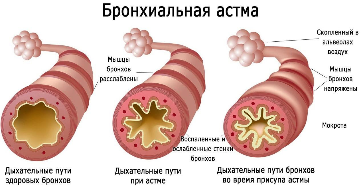 Методы диагностики бронхиальной астмы