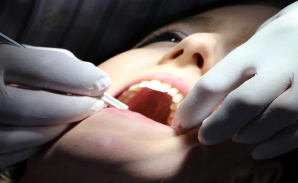 Профилактика зубов у врача
