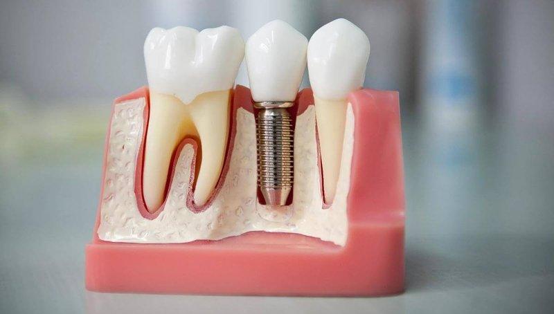 Зачем нужны зубные имплантанты и что нужно о них знать?