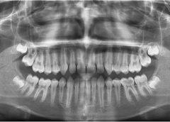 МРТ зубов и челюсти