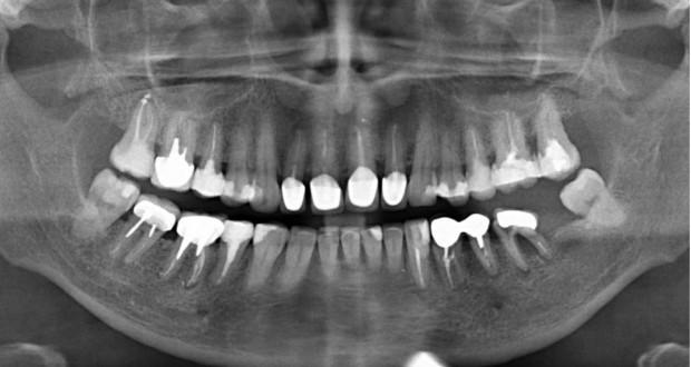 Пародонтоз и как не допустить потерю зубов
