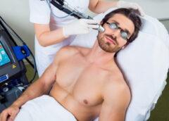 ТОП популярных процедур лазерной эпиляции у мужчин